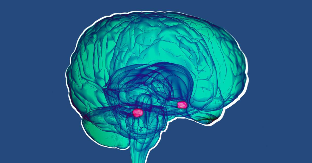 проверка мозга с картинками зуб мудрости